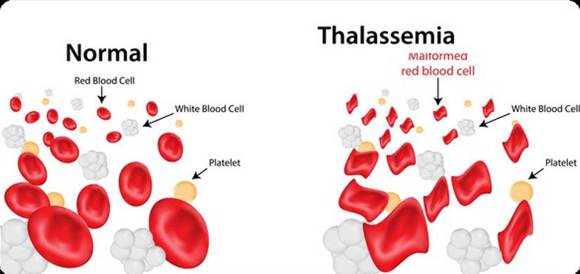 thalassemia-slideAA